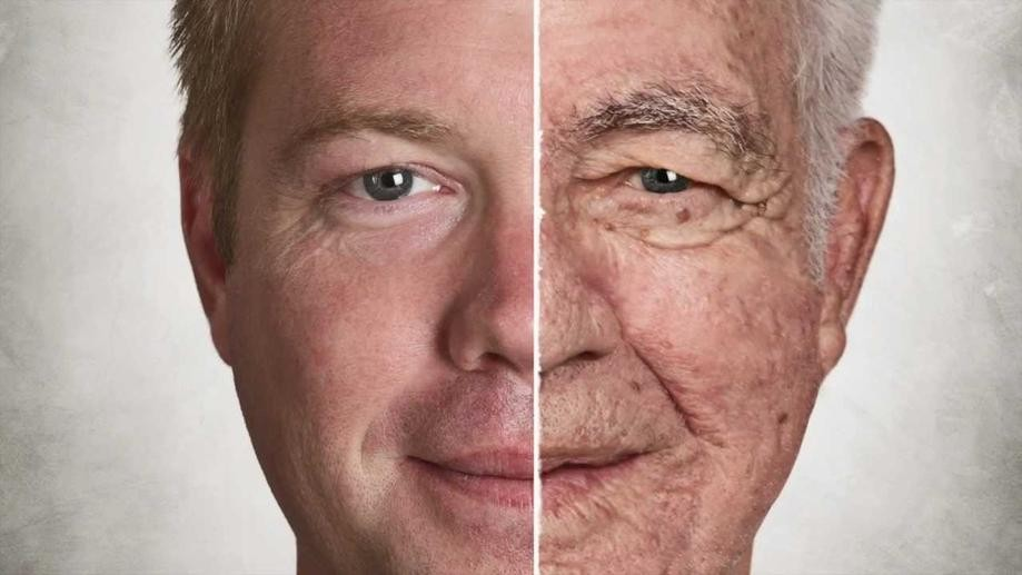 للرجال فقط أسباب تجاعيد الوجه وعلاجها طبيعيا وكالة سوا الإخبارية